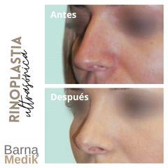 Rinoplastia - Clínica BarnaMedik