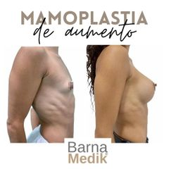 Aumento de pecho - Clínica BarnaMedik