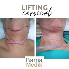 Lifting cervical - Clínica BarnaMedik