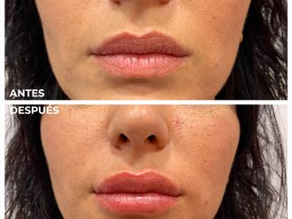 Aumento labios-737740