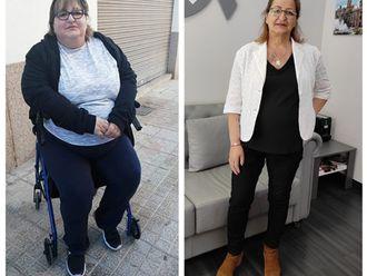 Tratamiento obesidad - 790303