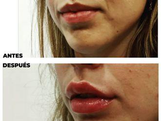 Medicina estética-790306