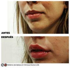 Aumento de labios - Clínicas Doctor Life