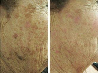 Dermatología-501715