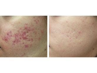 Tratamiento antiacné-501716