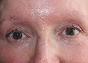 Alopecia antes de la micropigmentación