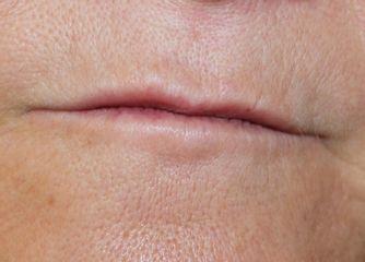 Antes del tratamiento de micropigmentación. Labios finos y despigmentados.