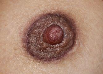 Cicatriz periareolar camuflada tras la micropigmentación