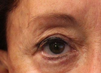 Cejas antes del tratamiento de micropigmentación