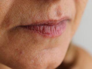 Micropigmentación labial antes del tratamiento.