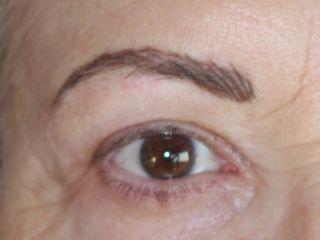 Después del tratamiento de micropigmentación en cejas canosas , efectos