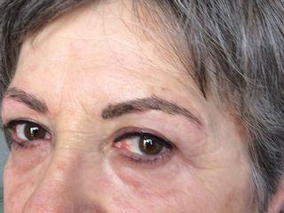 Después del tratamiento de micropigmentación y relleno de pestañas superior.