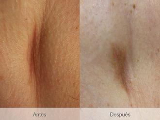 Corrección cicatrices - 486768