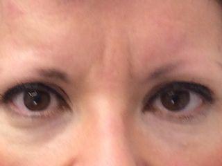 Antes micropigmentación de cejas
