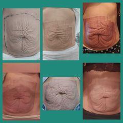 Tratamiento para reducir abdomen