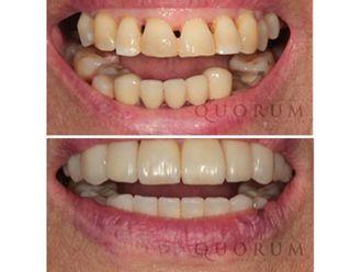 Carillas dentales - 496440