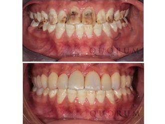 Carillas dentales - 496441