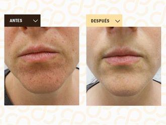 Dermatología-786263