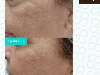Rejuvenecimiento facial - 799884