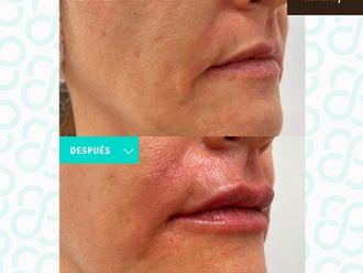 Rellenos faciales - 799887