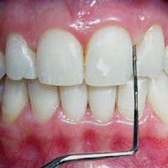 Clínica Dental Gal·la Placídia