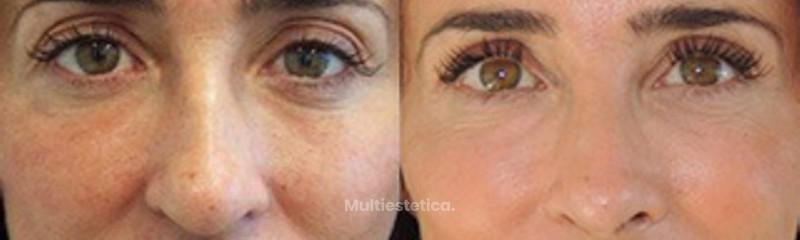 Rinoplastia María Patiño | Antes y Después