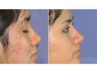 Tratamiento antiacné-626886