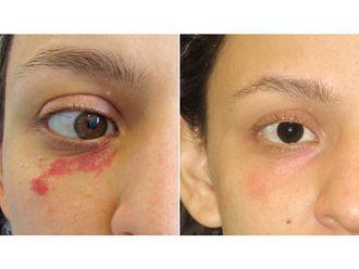 Tratamiento antimanchas-626928