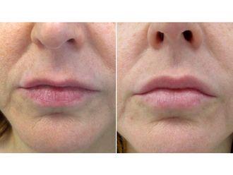 Rellenos faciales-626932