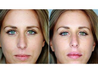 Aumento labios-626933