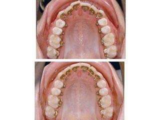 Ortodoncia lingual interior