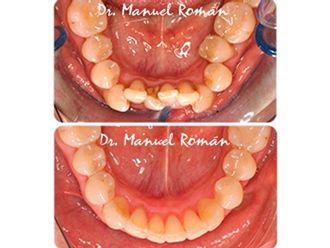 Ortodoncia invisible - 496786