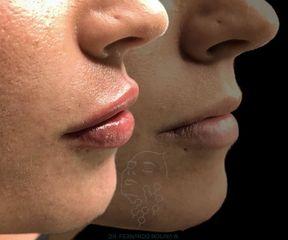 Aumento de labios - Dr. Fernando Molina