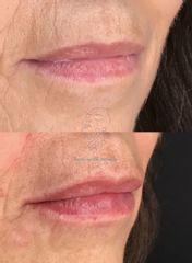 Perfilado de labios - Dr. Fernando Molina