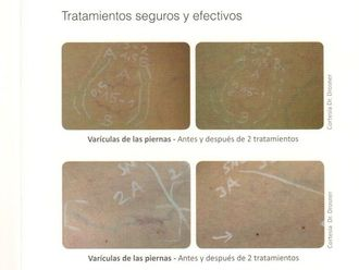 Tratamiento varices-616023
