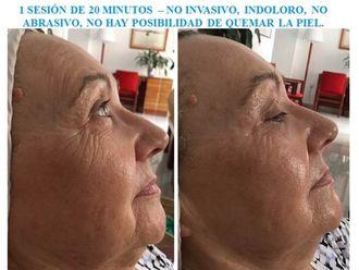 Rejuvenecimiento facial-524891