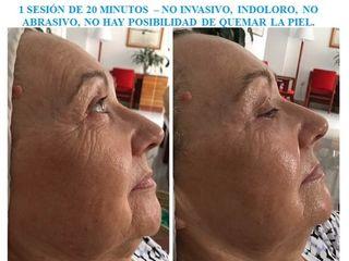 Antes y depués Sesión rejuvenecimiento facial