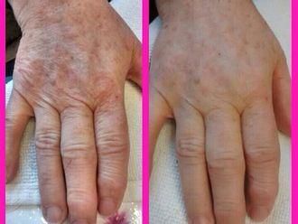 Dermatología-524892