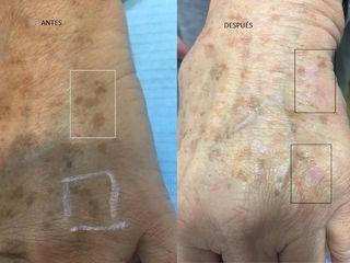 Antes y después Lentigos solares manos