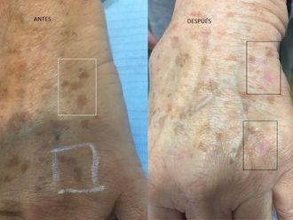 Tratamiento antimanchas - 632365