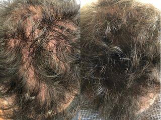 Antes y después PRP Capilar