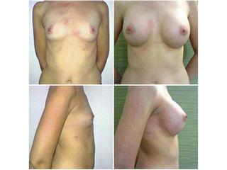 Paciente intervenida de aumento de mamas