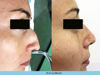 Antes y después Rinoplastia - Dr. Sergio Morral
