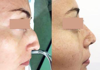 Antes y despuésb Rinoplastia - Dr. Sergio Morral