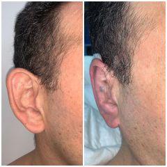 Antes y después Otoplastia - Dr. Sergio Morral