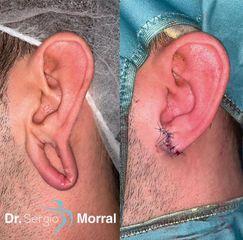 Antes y después Lobuloplastia - Dr. Sergio Morral