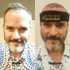Tratamiento capilar - Dr. Sergio Morral