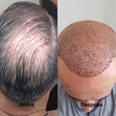Antes y después Tratamiento capilar - Dr. Sergio Morral