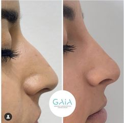 Clínica Gaia - Rinomodelación con ácido hialurónico