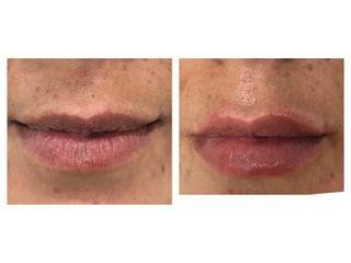 Hidratación de labios - Clínica Gaia